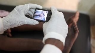 Étendre la télédermatologie en Afrique
